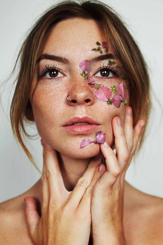 Skin Freckles